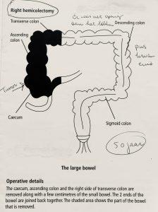 Operatie details